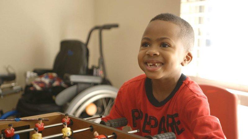 """USA: la première greffe des deux mains chez un enfant est un """"succès"""""""