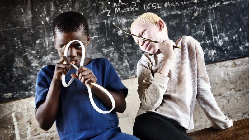 Mozambique: un jeune albinos de 17 ans démembré, son crâne fracassé, son cerveau emporté