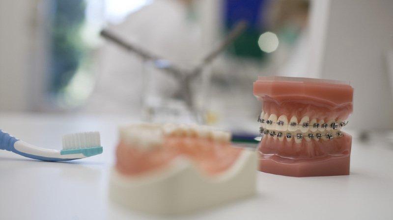 Assurances: les Vaudois voteront sur le remboursement des soins dentaires