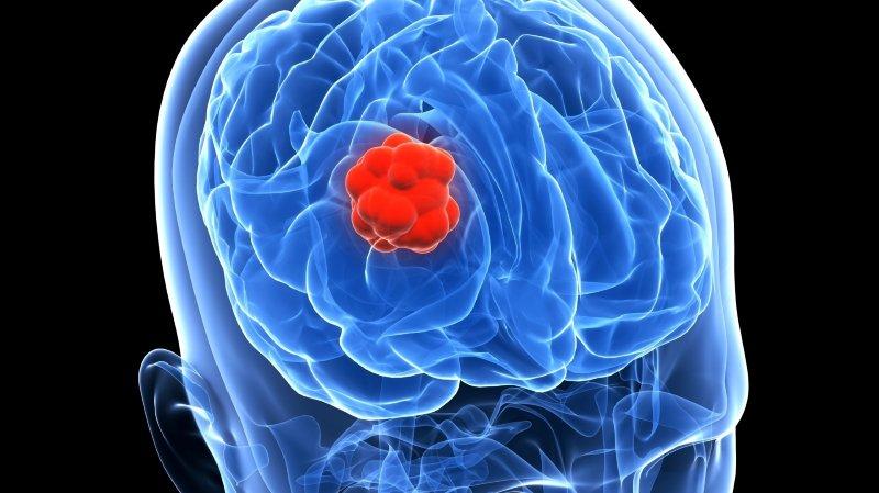 """Université de Berne: elle entend des voix, elle n'est pas folle, elle a """"simplement"""" une tumeur au cerveau"""
