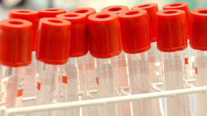 Dopage: les flacons contentant les échantillons peuvent être ouverts et donc, les tests falsifiés