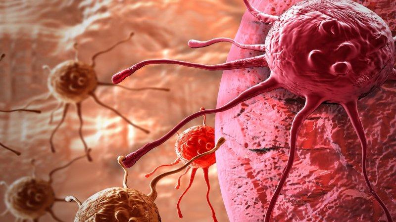 Santé: ce jeudi 1er février, c'est la Journée suisse contre le cancer. Décryptage en chiffres de cette maladie