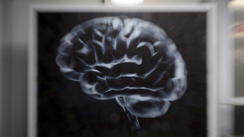 Le cerveau humain cesserait de produire les neurones de la mémoire dès l'âge de 13 ans