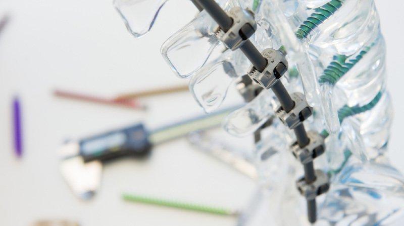 Implant files: Swissmedic reconnaît une hausse des cas, mais rassure les patients suisses