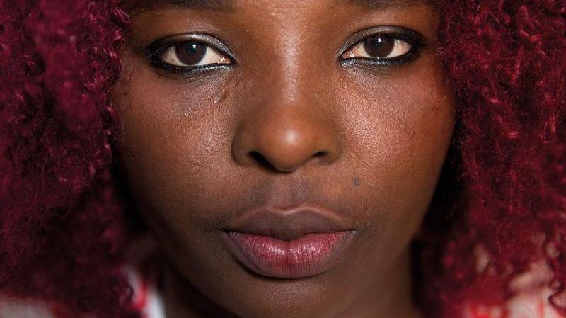Exposition MSF « La voix de mes blessures »