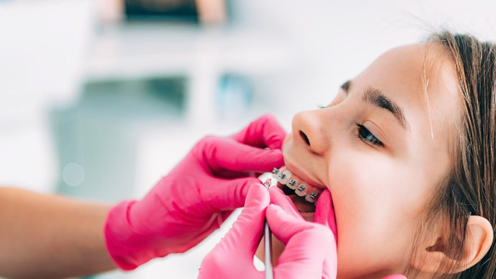 En Suisse, la plupart des enfants sont couverts par des assurances complémentaires. Les frais liés à la pose d'appareils orthodontiques sont donc souvent remboursés, mais partiellement.