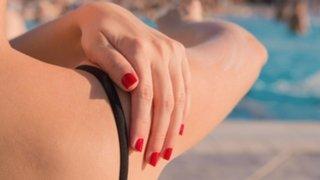 Connaissez-vous les remèdes naturels pour soulager les bobos de vacances?